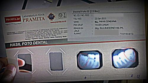 foto dental
